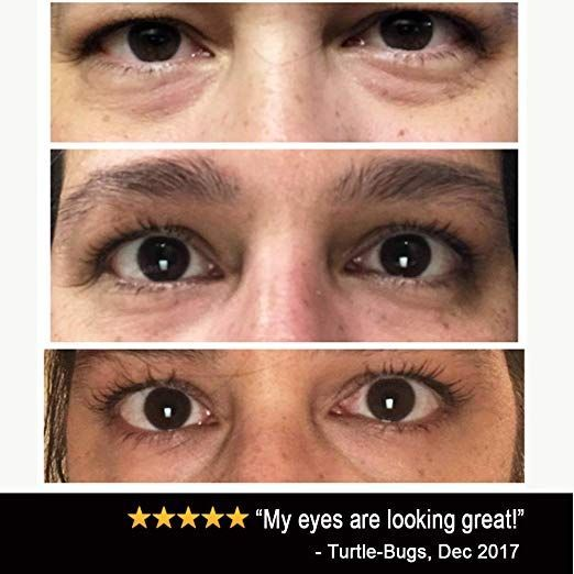 Amazon Com Eye Cream Moisturizer 1oz 94 Natural Anti Aging Skin Care Beauty Ad Natural Anti Aging Skin Care Moisturizer Cream Natural Anti Aging