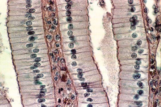 Epiteliales, forman la piel y cubren la mayoría de órganos y tapizan las cavidades huecas.