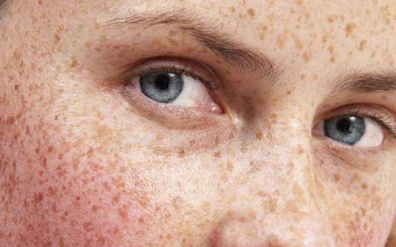 New Advances in Treating Hyperpigmentation: July 2008, Hair Beauty, Treating Hyperpigmentation