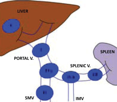 Proposed nomenclature of portal systems aneurysms type i for Hepatic portal v