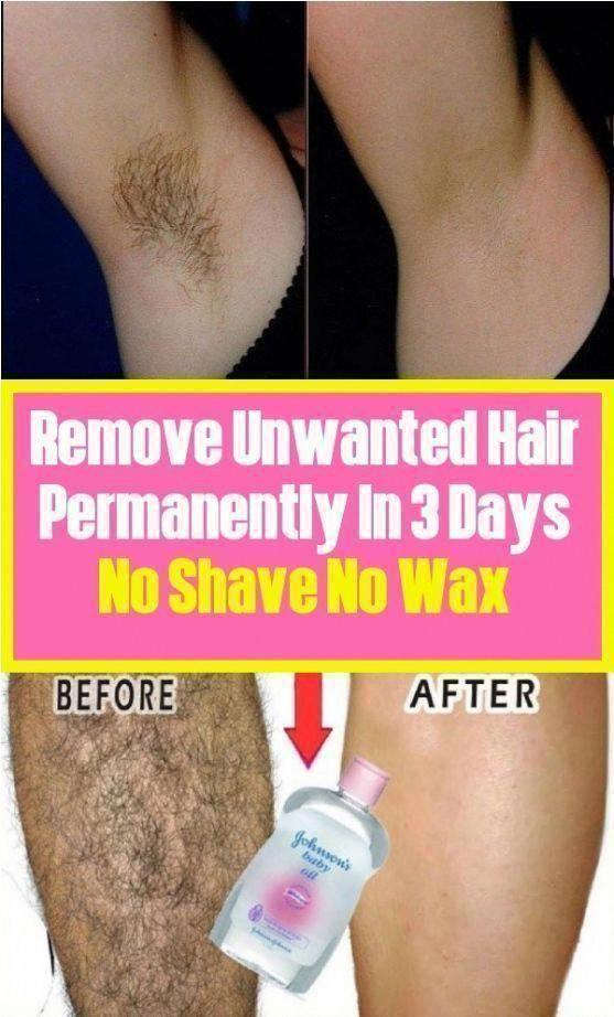 c996661cc120837f699652e60f07e761 - How To Get Rid Of Unwanted Hair Forever Naturally
