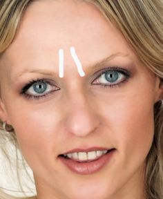 How to Get Rid of Frown, Glabella or Furrow Lines on Forehead - Alternative to Botox .