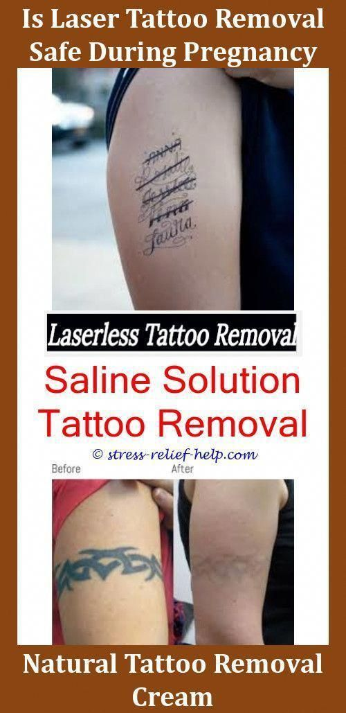 Custom Temporary Tattoos Laser Tattoo Removal Before After How Much Does It Cost To Remove A Tattoo Uk How To Remove Tattoo Ink From Skin Naturally Laser Tattoo