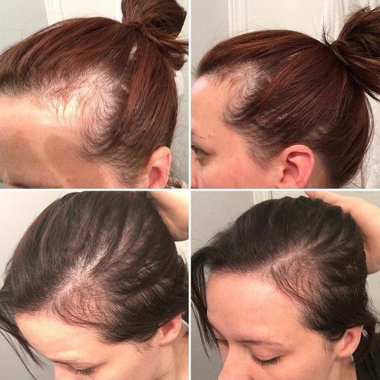 Testimonytuesday Postpartum Hairloss Is A Bummer Thinning In The Temple Area Losing H Postpartum Hair Loss Hair Loss After Baby Hairstyles For Thin Hair