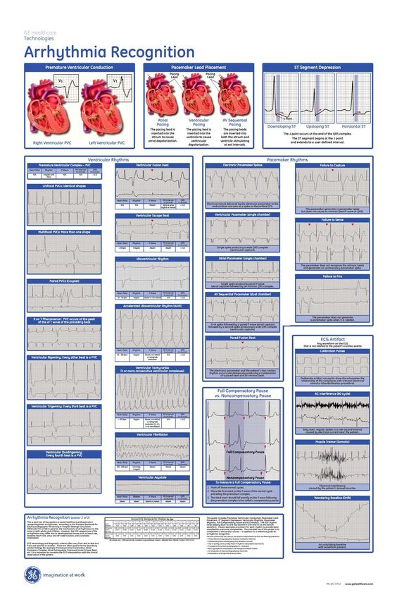 acls pocket reference cards christopherbathum co new cpr guidelines cheat sheet 2017 cpr guidelines cheat sheet