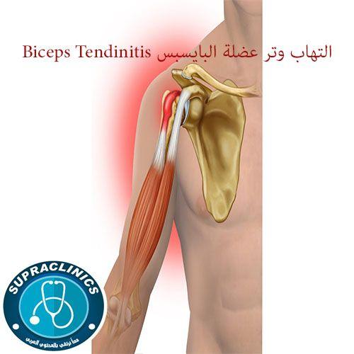 التهاب وتر عضلة البايسبس Biceps Tendinitis Bicep Tendonitis Ballet Shoes Biceps