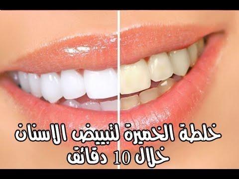 أفضل وأسرع طريقة لتبييض الاسنان وازالة رائحة الفم مضمونة وغير مكلفة وطبيعية تبييض الاسنان تبييض الاسنان في المنزل خلطة مضمونة وسريعة لتبيض الأسنان في المن