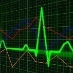 Märkte weltweit Handel mit binären Optionen