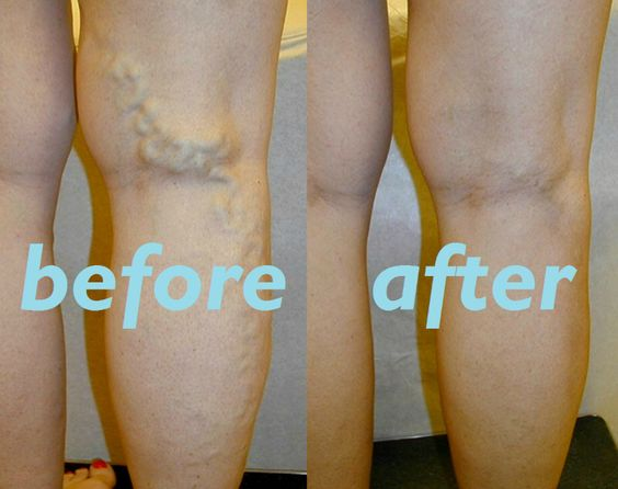 How To Treat Spider Veins On Legs Naturally