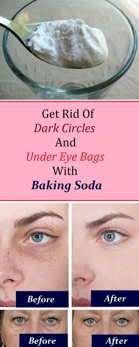 Eyes: 1. Add 1 teaspoon of backing soda in a glass of hot water or tea and mix it well. 2. Take a pair of cotton pads and soak them in the solution and place them under the eye. 3. Let it sit for 10-15 minutes, then rinse it off and apply a moisturizer Practicing this procedure daily will render amazing results in just a week.: