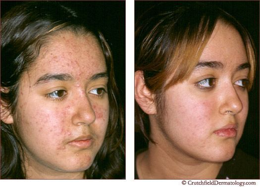 Before And After Acne Success At Crutchfield Dermatology Acnescarsremedies Preventingstretchmarks Acne Cure Exposed Skin Care Laser Acne Treatment