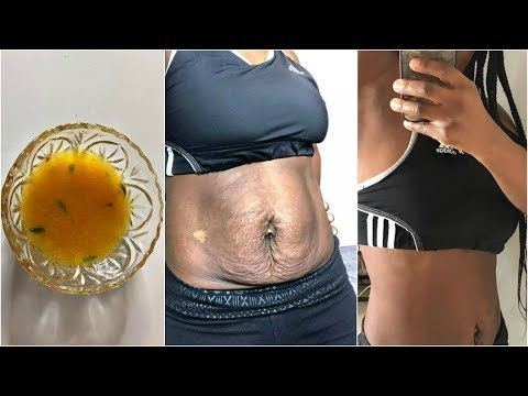 I Tried Asian Skin Tighten Remedy For 3 Days This Works Youtube Skin Tightening Remedies Natural Skin Tightening Belly Skin Tightening