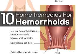 At Home Remedies For Hemorrhoids Check more at http://www.healthyandsmooth.com/hemorrhoids-treatment/at-home-remedies-for-hemorrhoids/