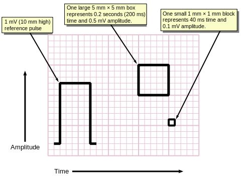 Measuring time and voltage with ECG graph paper ECG - graph paper with axis
