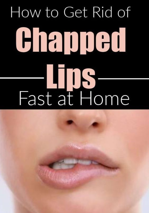 Soft Plump And Glossy Lips Look Amazing As We All Want That Kind Of Lips Because Pink Lips Not Only Look In 2020 Lip Scrub Skin Care Tutorial Best Skin Care Routine