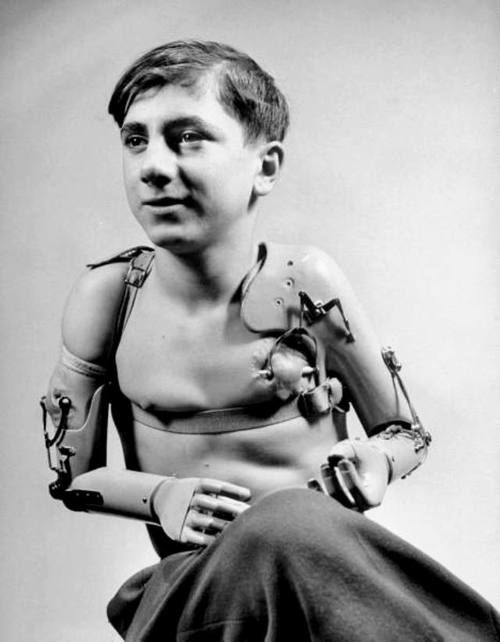 war and prosthetics Prosthetic limbs had existed for hundreds of years before the war, but the sudden  influx overwhelmed medical services on all sides and even.