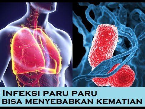 17+ Ciri ciri kena flek paru paru trends