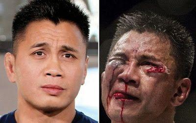 Visages de combattants de lUFC avant après combat   visages de combattants de l ufc avant apres combat 4