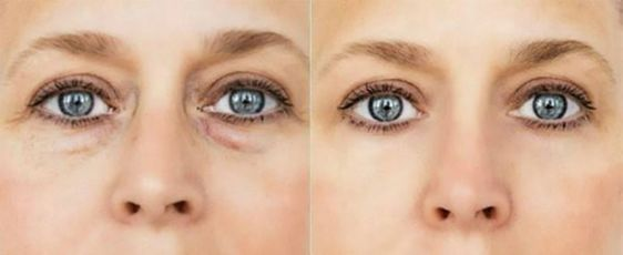 ízületi fájdalomzsákok a szem alatt gyűrűs ujj fájdalma