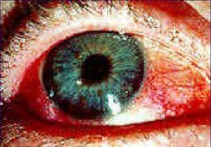 The Symptoms Of Sjogrens Disease | The Laughing Crow