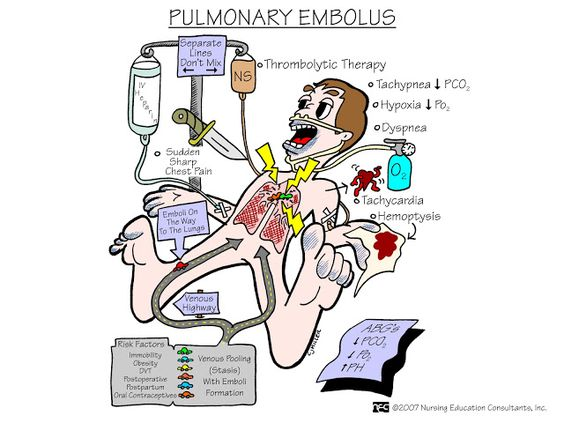 Nursing Mnemonics and Tips: Pulmonary emboli: