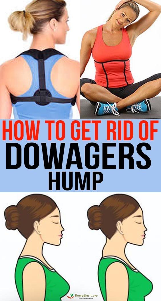 cba480ffae234026112e8ab15d693522 - How To Get Rid Of Dowager S Hump Exercises