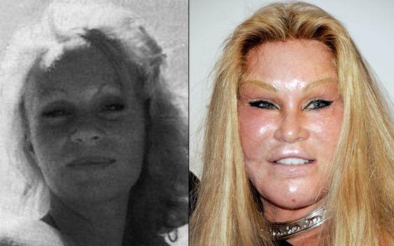 Antes e depois dos famosos: as plásticas que não deram certo