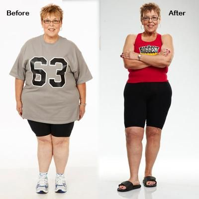 Buy alli weight loss pill picture 2