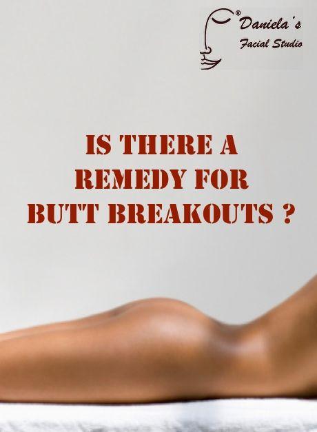 Breakouts On Butt 5