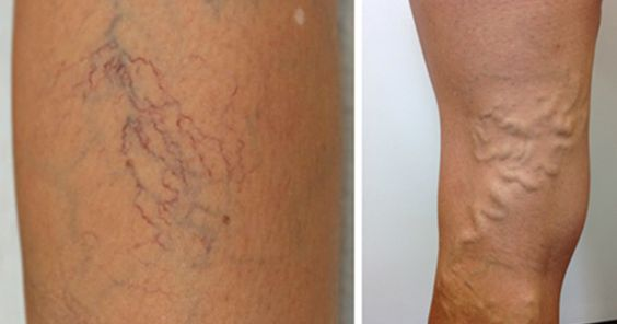 """""""More than 40 million people in the United States suffer from varicose veins."""""""