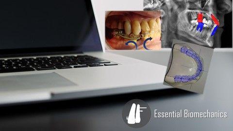 Introduction To Orthodontic Biomechanics Orthodontics Biomechanics Online Courses With Certificates