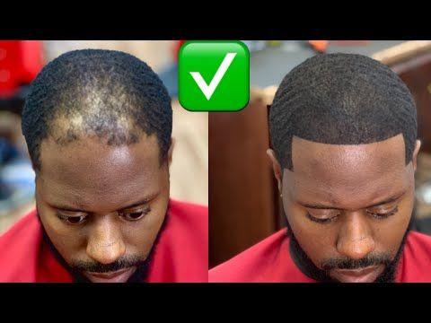4 Male Model Secrets To Fix A Receding Hairline Youtube Mens Haircuts Fade Fade Haircut Haircuts For Men
