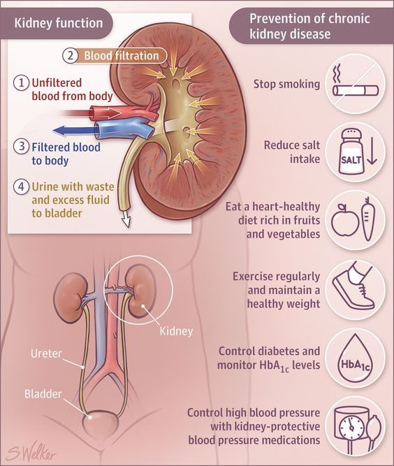 Chronic Kidney Disease Prevention Guide All You Need To Know