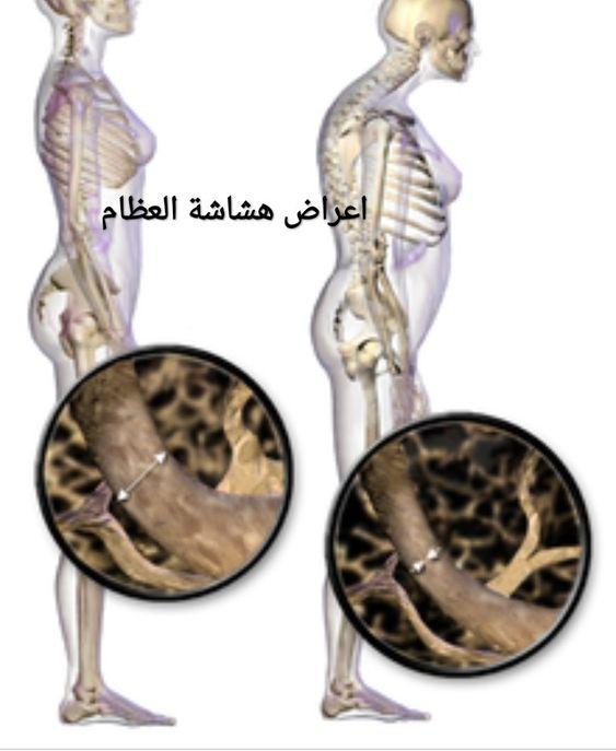 اعراض هشاشة العظام Wall Clock Clock Decor