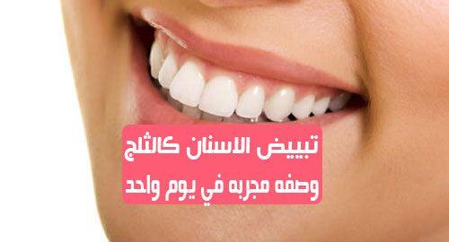 تبييض الاسنان كالثلج وصفه مجربه في يوم واحد الحفاظ على أسنان بيضاء ونظيفة هو عمل تقوم به كل يوم هناك طرق سريعة وفعالة ولا تعتمد دائما على المواد الكيميائية ات