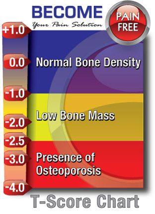Do I Need a Bone Density Test?