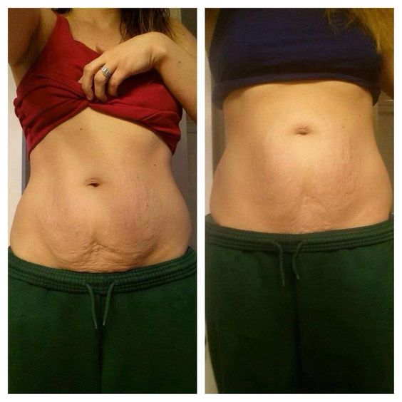 And the results keep coming!!! What will yours be?!!! Contact me to help you get started for this summer ready body or order your full treatment today! Get started now or regret it later.... 713-498-9852 | wrapitrealgood.myitworks. com #getreadyforsummer #orderyourstoday #getstartednow #results #realcustomers #realresults