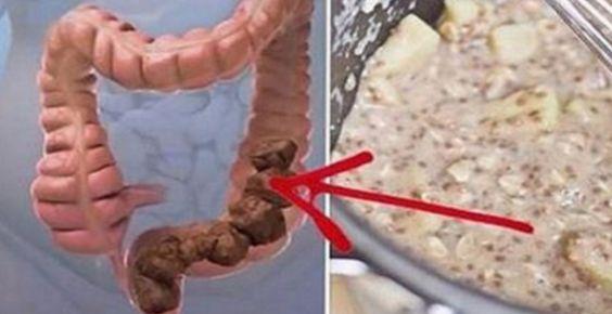 Svaku večer prije spavanja piti jednu čašu: Očistite debelo crijevo i spalite masnoće!