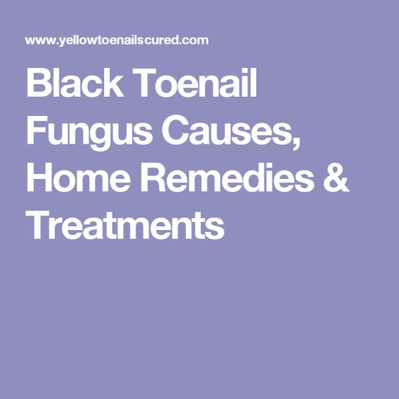What Causes Toenail Fungus Home Remedies