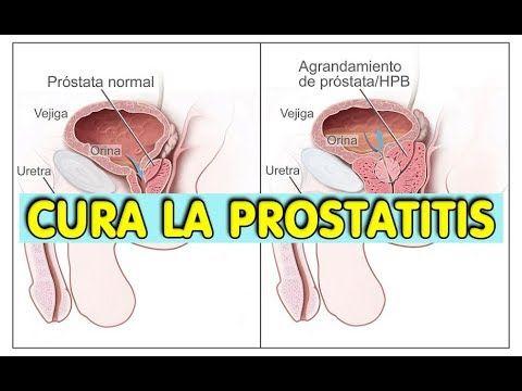 tipos de prostatitis en youtube