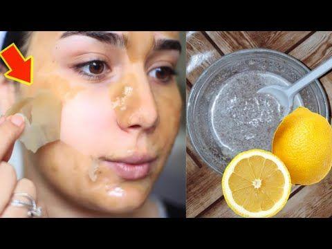 Treatment Jerawat Di Beauty Clinic Female Daily Forum