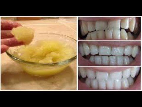 Seperti Sulap Gigi Kuning Jadi Putih Cemerlang Hanya Dalam 3 Hari Terbukti Youtube Kesehatan Gigi Kecantikan