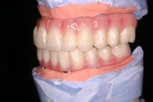 Dental implants are the longest-lasting and most natural looking/functioning solution for replacing missing teeth.
