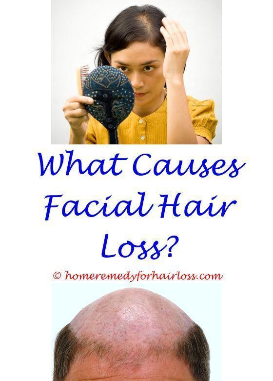 Lamictal And Hair Loss Side Effects What Can I Eat To Stop Hair Loss Baseball Hats Hair Loss Hcg Diet Hair Lo Chemotherapy Hair Loss Hair Loss Stop Hair Loss
