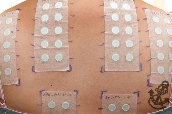 Allergy Patch Test - I tried to figure out my BoP allergy with elimination diets and guessing. This was the only way to figure it out for me. Too hard to drill down to the chemical level on your own.