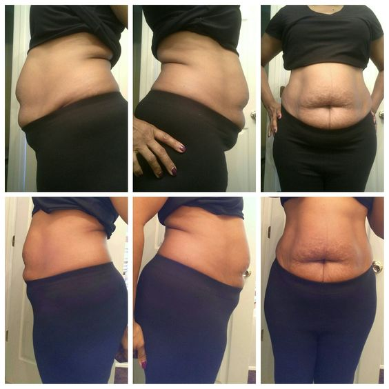 Next day results from one wrap! Visit my site to get started on toning and tightening today!   Wrapped4good.com