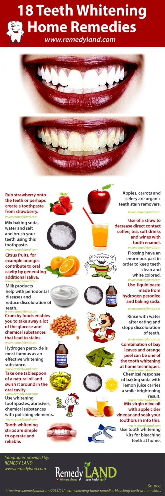 Teeth Whitening Home Remedies