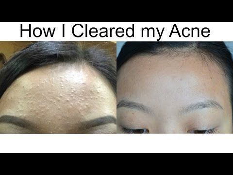 Clear Tiny Forehead Bumps Youtube Acneremedies Blackheadsremovaltool Bumpssimple Skin Bumps Forehead Acne Forehead Bumps