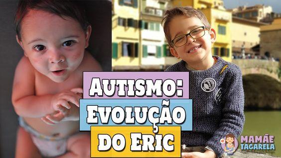Autismo não tem cura. Mas tem tratamento e evolução. Hoje fazemos uma comparação de como era o autismo do Eric quando ele era bebê e como ele é agora (com 5 anos). Se você é mãe de autista, esse vídeo está cheio de dicas para o dia-a-dia que podem te ajudar ;)