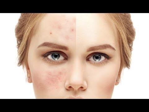 طريقة ازالة الحبوب من الوجه في يوم واحد بخطوات بسيطة Control Oily Skin Pimple Solution Skin Benefits